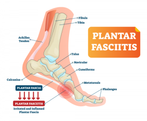 medical illustration showing Plantar Fasciitis