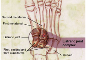 Dorsal view of bones of ankle and foot with Lisfranc Joint and Complex