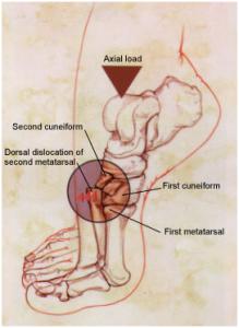 Dorsal dislocation of second metatarsal in Lisfranc Injury