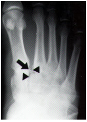 Lisfranc injury on radiograph. Similar to Santonio Holmes injury.
