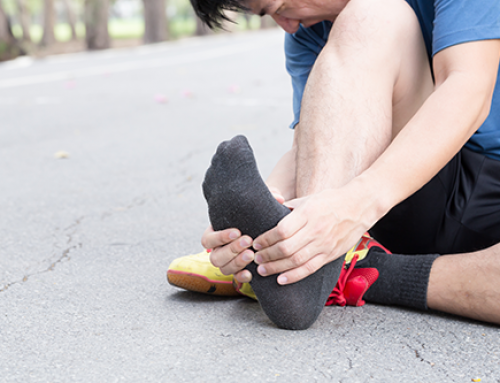 Runners are Prone to Plantar Fasciitis