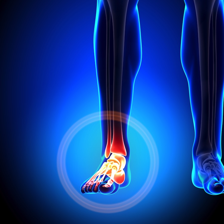 cold laser therapy for arthritis