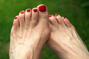 What Bunions Look Like | American Foot and Leg Specialists