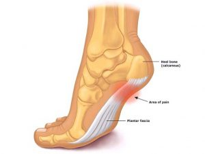 Plantar Fascia Rupture | Atlanta Podiatrists