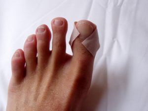 Ingrown Toenail Pain Can Limit You