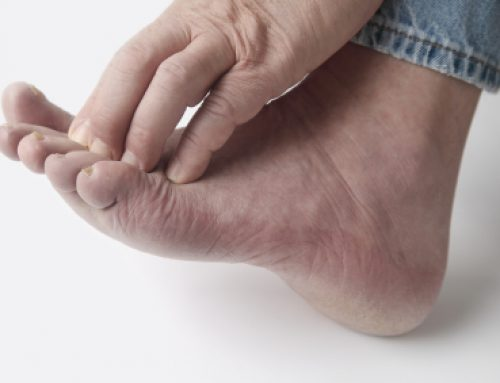 Diabetic Foot Problems – Ulcers