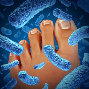 Foot with Infecting Germs | Athletes Foot | American Foot and Leg Specialists