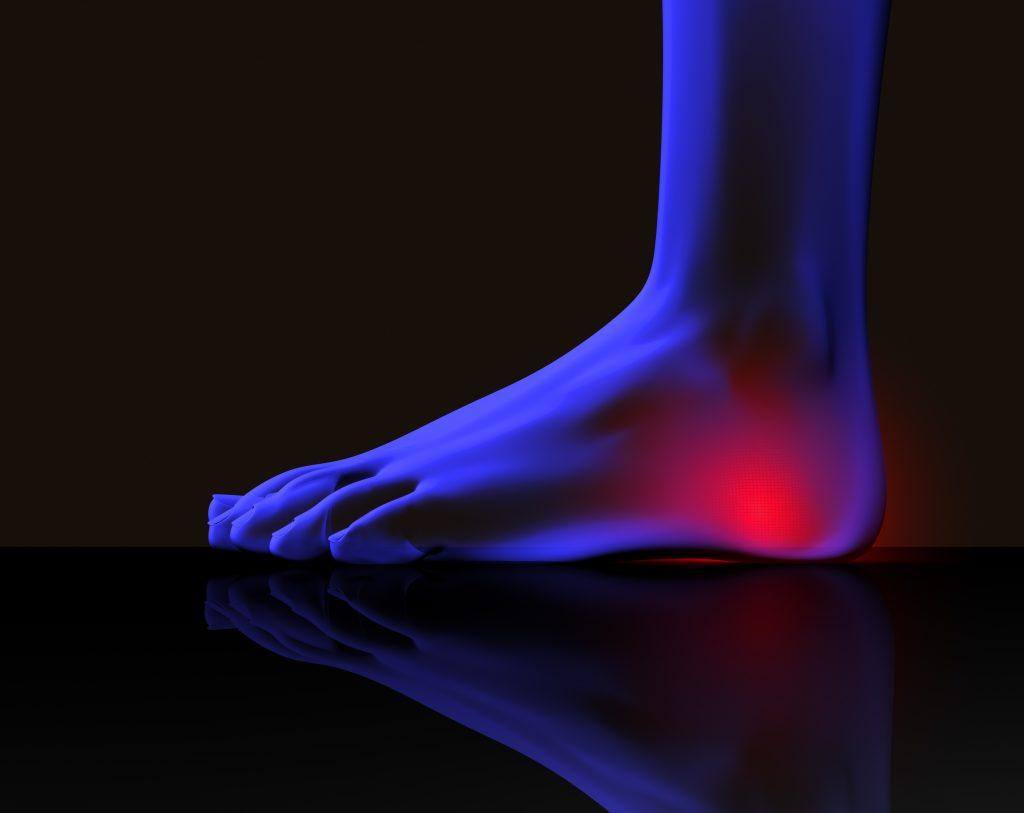 Five Heel Pain Causes Atlanta Podiatry American Foot