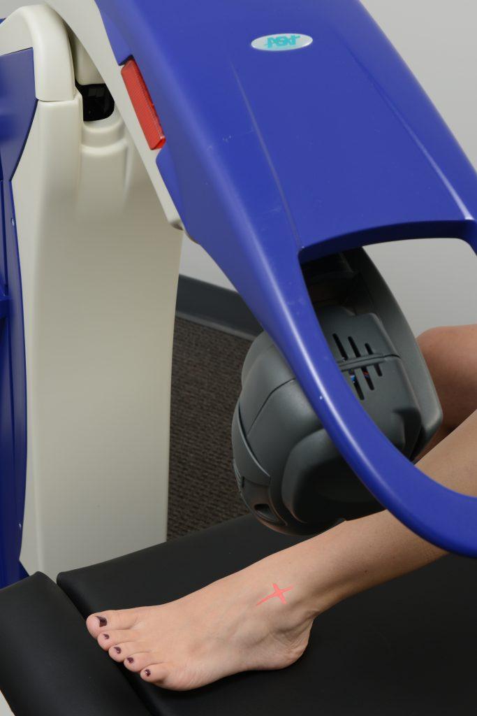 MLS Laser Therapy | Atlanta Podiatrists