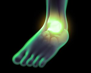 Laser treatment foot and ankle pain, Atlanta