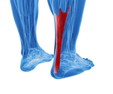 Achilles Tendinitis Treatment Tips