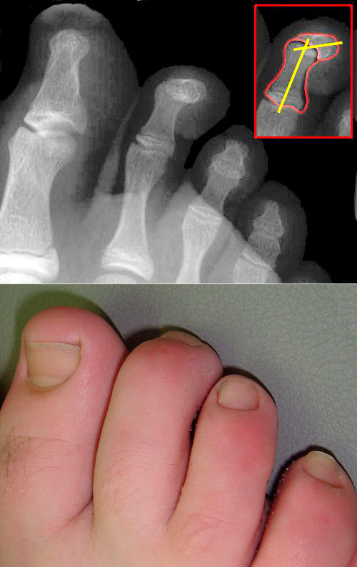What Is Hammer Toe? | American Foot & Leg Specialists
