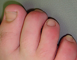 photo showing hammer toe | American Foot & Leg Specialists