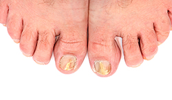 photo of toenails infected with fungus | American Foot & Leg Specialists
