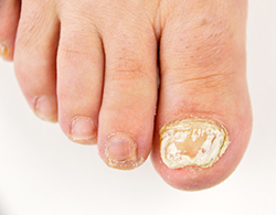Close up photo of left foot toe nail suffering from fungus infection | American Foot & Leg Specialists