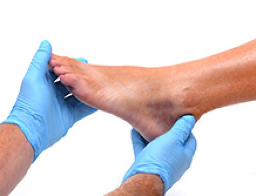 The Importance of Diabetics Having their Feet Checked Regularly