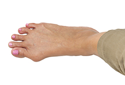 photo of a foot showing a bunion | American Foot & Leg Specialists