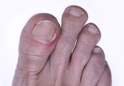 photo of inflammation of the nail of the big toe