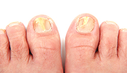 photo of toenails infected with a fungus | American Foot & Leg Specialists