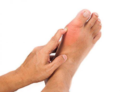 Severe Foot Pain: Gouty Arthritis