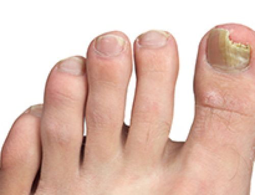 Toenail Fungus Sucks: American Foot to the Rescue