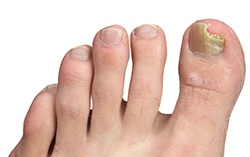 photo of toenail fungus at the peak of the infection