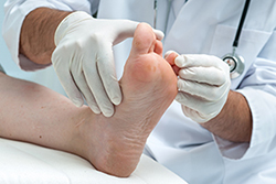 photo of foot doctor examining a foot