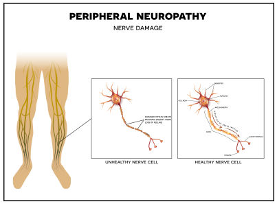 medical diagram showing peripheral neuropathy | American Foot & Leg Specialists