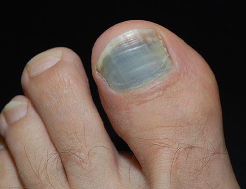 What Do Your Toenails Tell About Your Health?