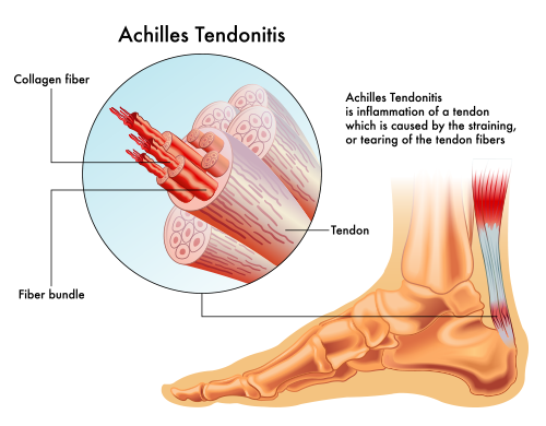 Achilles Tendonitis | medical illustration