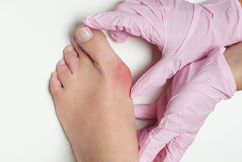 Bunion | Hallux valgus, bunion in foot on white background