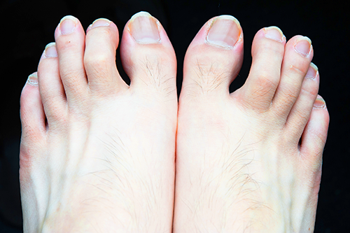 hammertoe | photo of two feet each with the second toe a hammertoe
