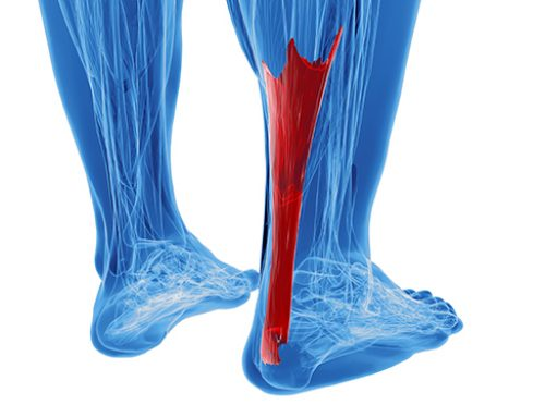 Achilles Tendonitis: A Pain for Athletes