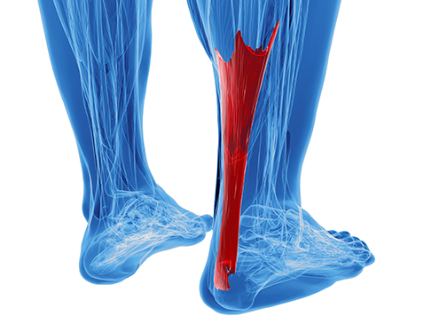 achilles tendonitis | color medical illustration