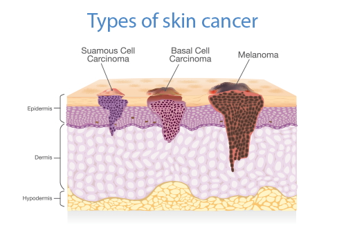 malignant melanoma | illustration of 3 types of skin cancer