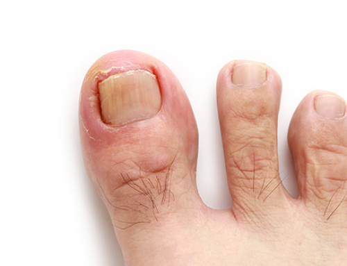 Diagnosing and Treating an Ingrown Toenail