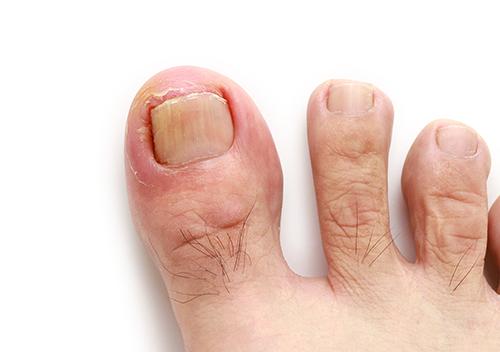 ingrown toenail | up close photo of an ingrown toenail