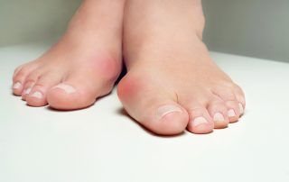 Toe red painful Bunion