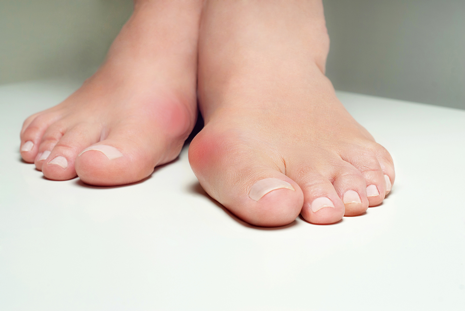 Read more about the article Bunion Problems