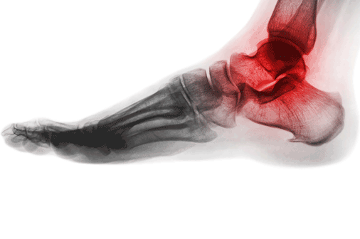 Foot and Ankle Pain therapy