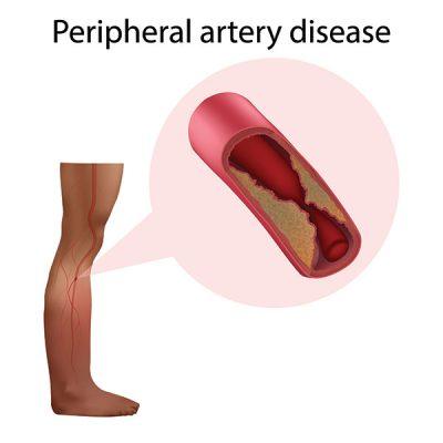 causes of peripheral artery disease